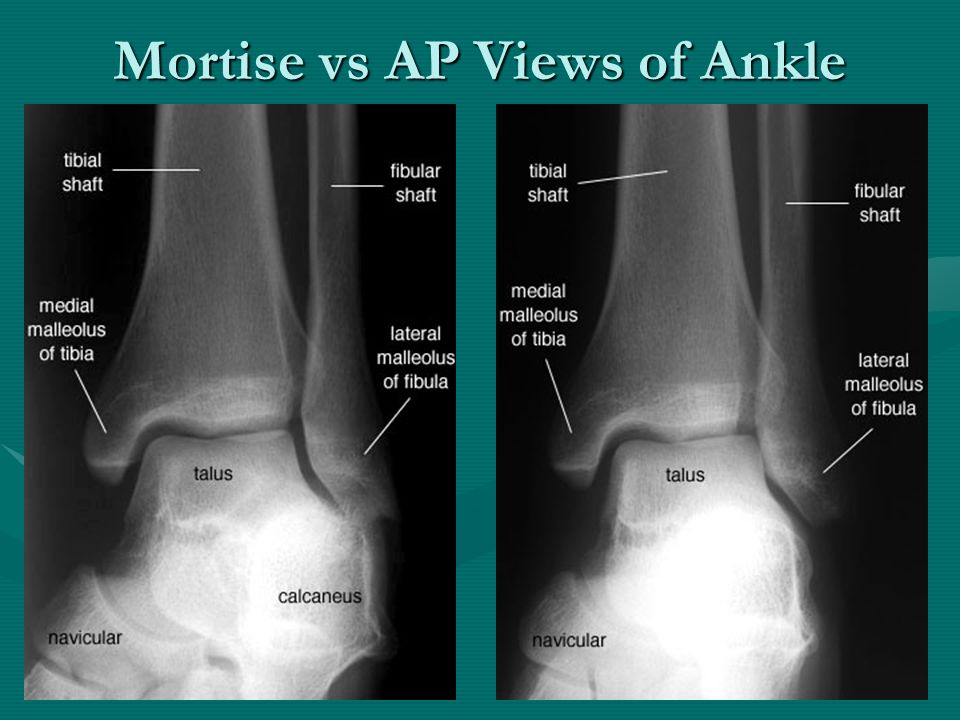 The Basics of Musculoskeletal Imaging - ppt video online ...