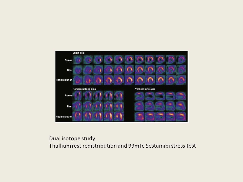 Doctor insights on: Lexiscan Sestamibi Stress Test - HealthTap