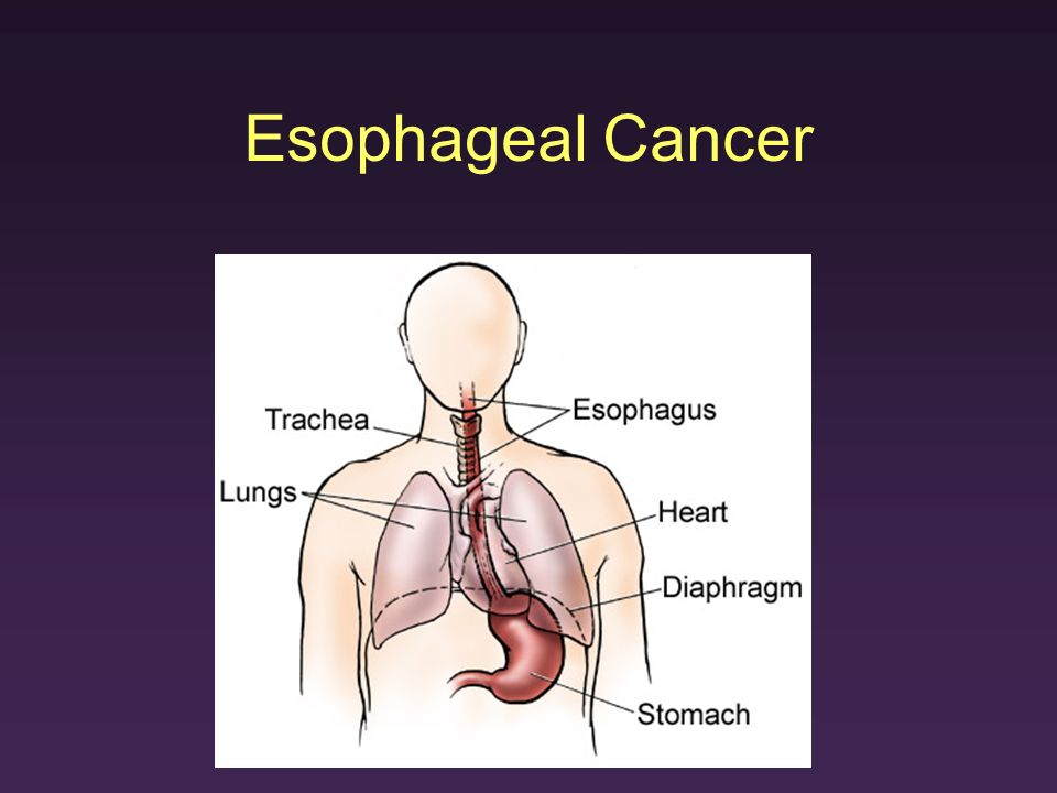 epidemiology of esophageal cancer Hema report- esophageal cancer - download as  440 men 3210 men and women will die of cancer of the esophagus in 2013 epidemiology it is.