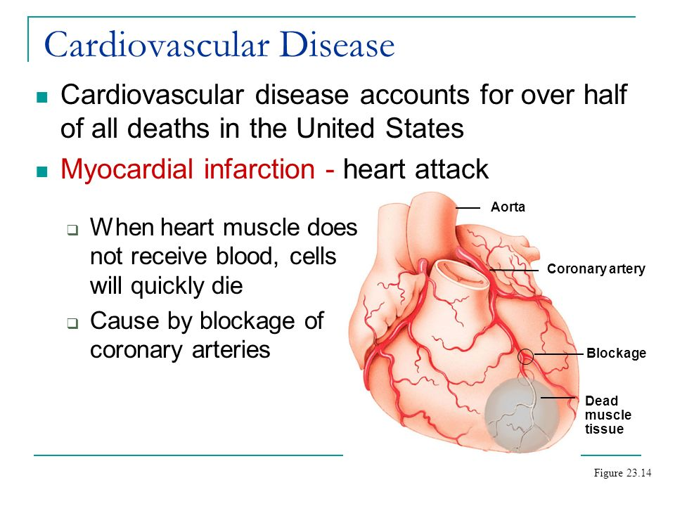 """cardiovascular disease in adults essay Sample essay: cardiovascular case cardiovascular disease is a wide-encompassing category that includes more and more adults now have an """"indication"""" for."""