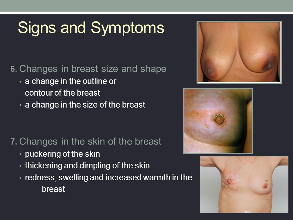 Breast Cancer Screening and Diagnosis - ppt video online ...