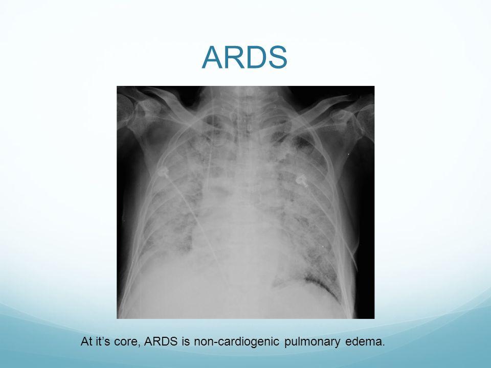 acute cardiogenic pulmonary edema guidelines