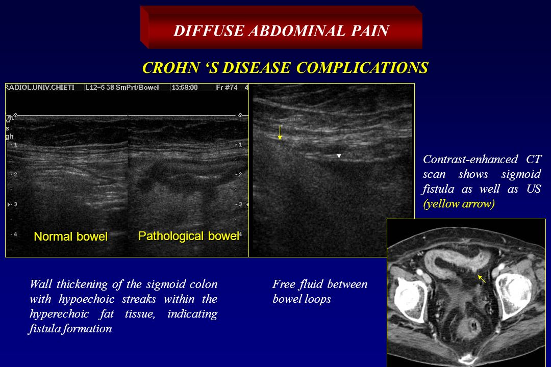 Mdct us acute abdominal pain ppt video online download for Diffuse mural thickening