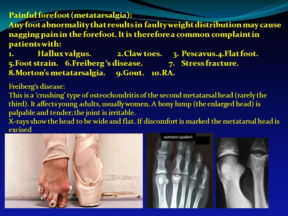 Painful forefoot (metatarsalgia):