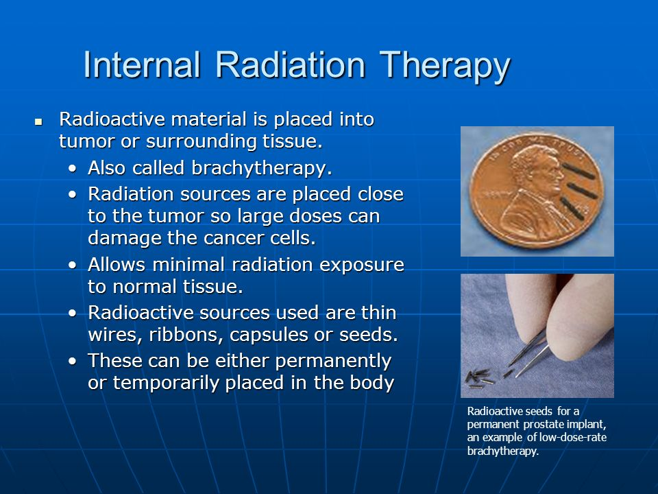 Radioactive source and cancer treatment