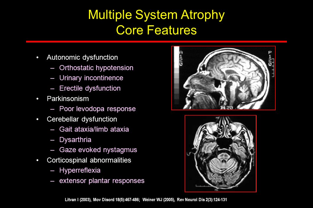 Multiple System Atrophy Core Features