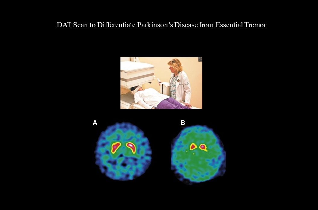 DAT Scan to Differentiate Parkinson's Disease from Essential Tremor