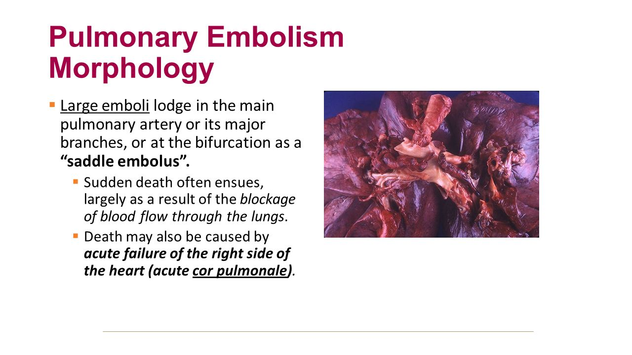 pulmonary embolism Symptoms of 'walking pneumonia' you may not even know you have it.