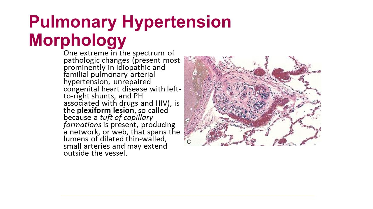 Pulmonary Embolism Morphology - ppt download