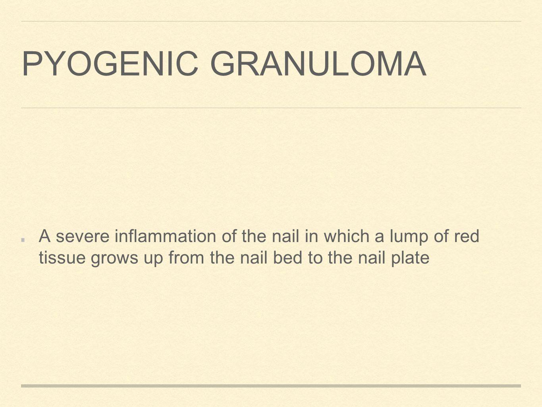 pyogenic granuloma nail