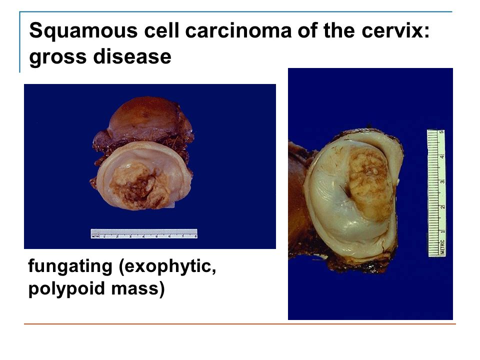 Squamous cell carcinoma of the cervix: gross disease