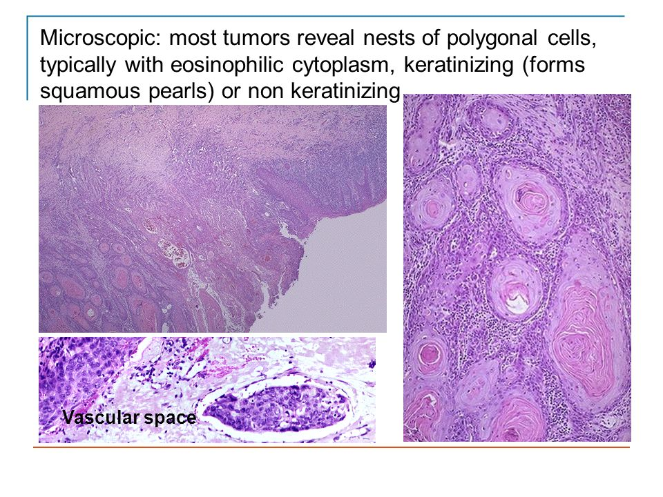 Microscopic: most tumors reveal nests of polygonal cells, typically with eosinophilic cytoplasm, keratinizing (forms squamous pearls) or non keratinizing