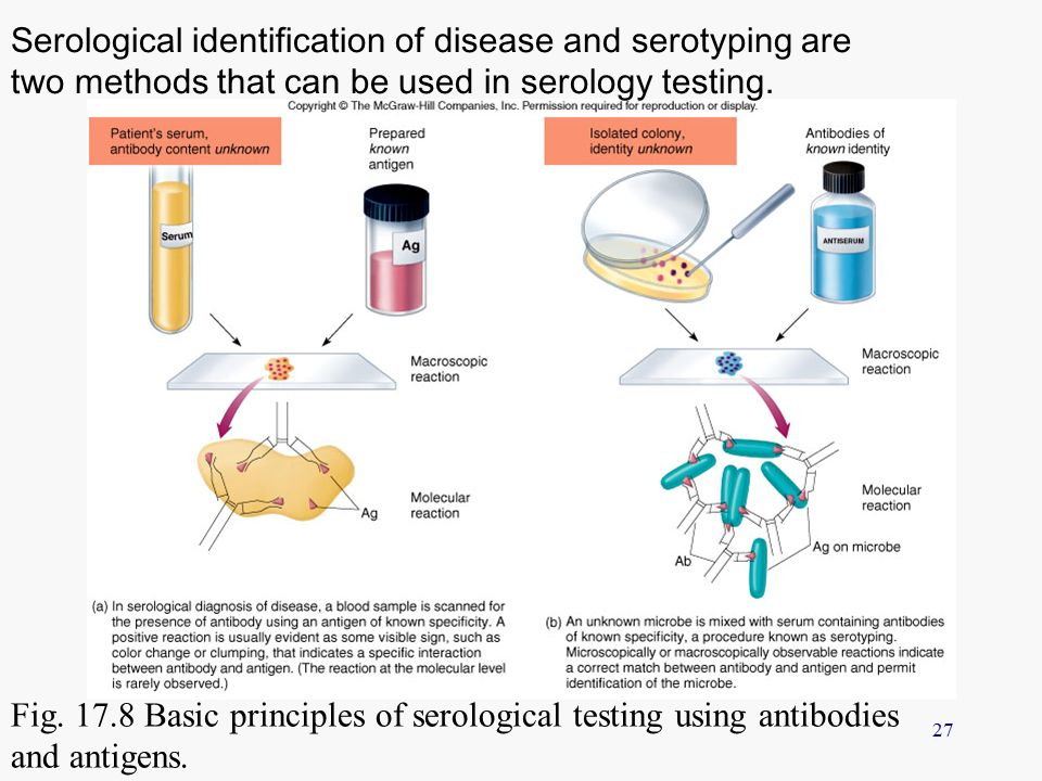 serological testing The definitive diagnosis of hiv infection at any age requires diagnostic testing that confirms the presence of hiv serological testing identifies hiv antigen and/or antibody generated as.