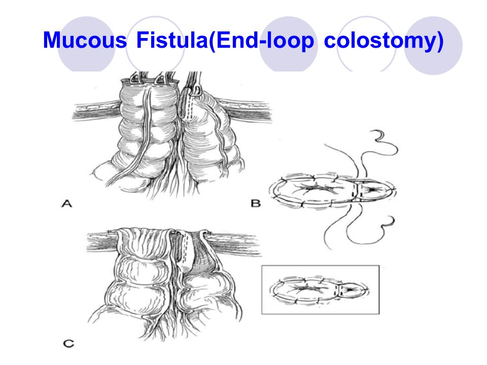 End Colostomy Intestinal Stomas 台�...
