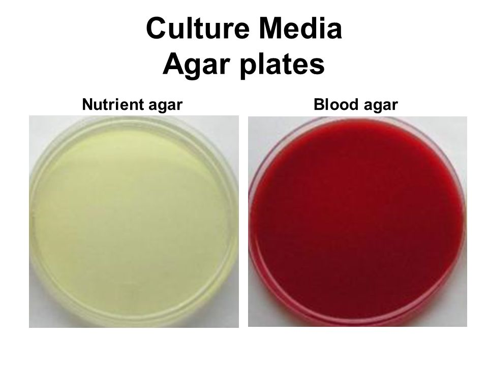 preparation of nutrient agar pdf