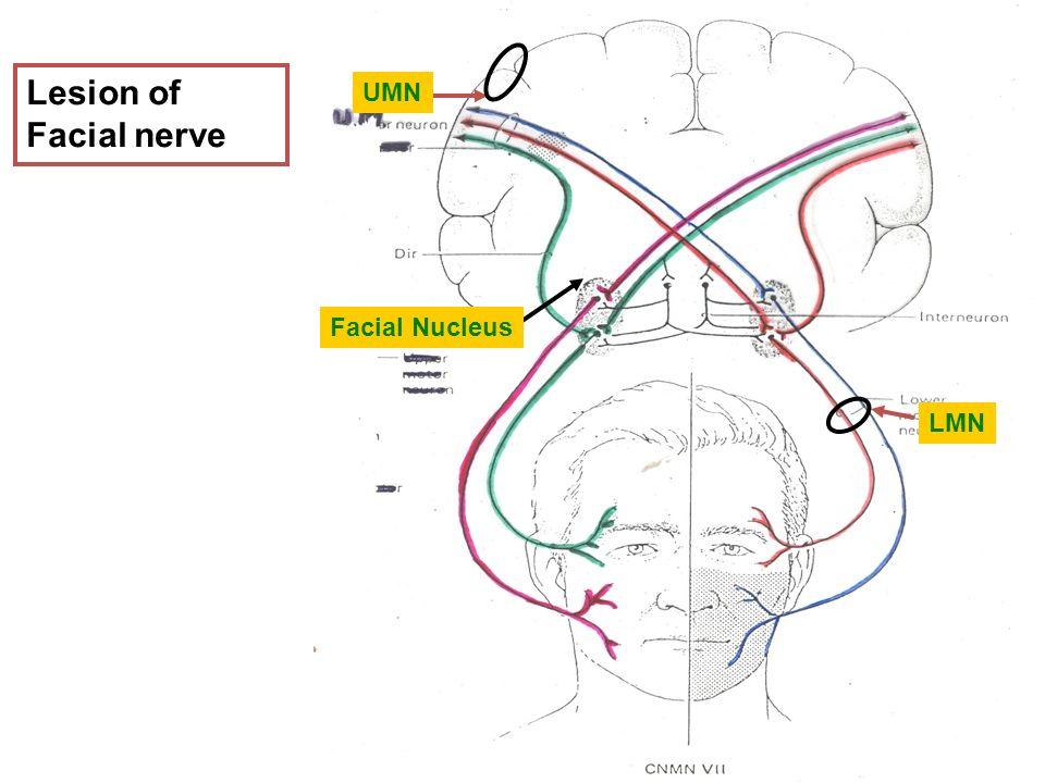 Facial Nerve Palsy - ambonsallcom