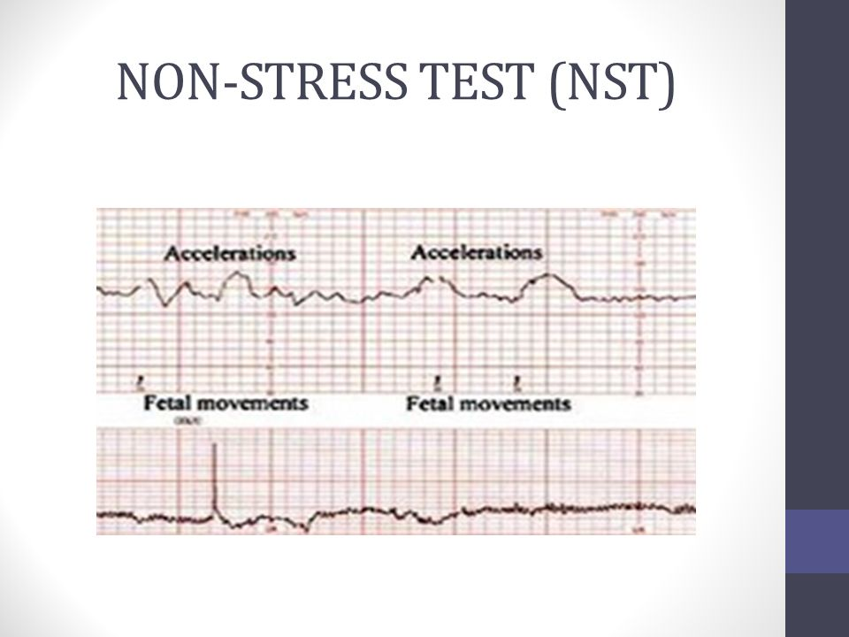 antepartum fetal surveillance 2014 Antepartum & intrapartum management  fetal heart rate monitoring june 6, 2014 7:00 - 8:00 am continental breakfast.