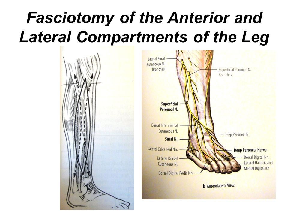 lateral compartment of leg - photo #27
