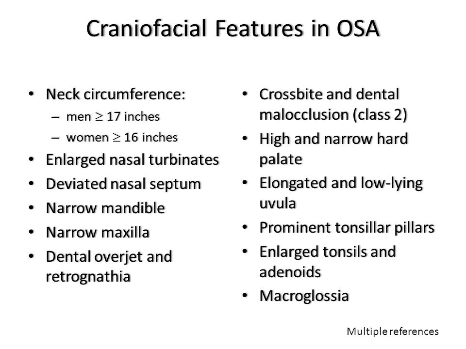 Craniofacial Features in OSA