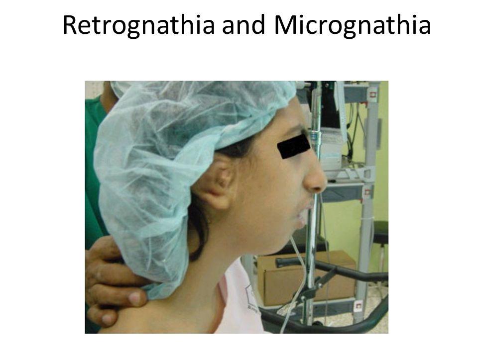 Retrognathia and Micrognathia