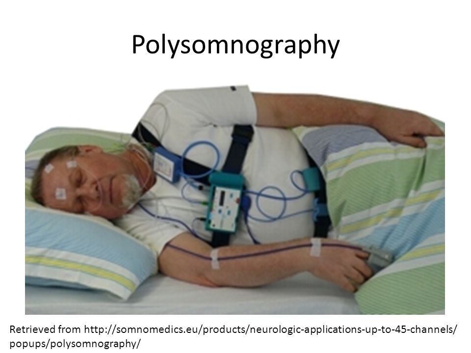 Polysomnography Retrieved from http://somnomedics.eu/products/neurologic-applications-up-to-45-channels/