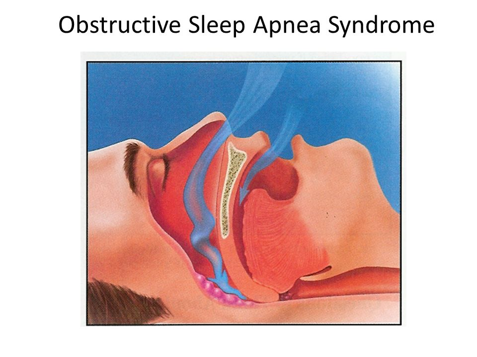 AACN Symposium 2016: Does My Patient Have Sleep Apnea ...
