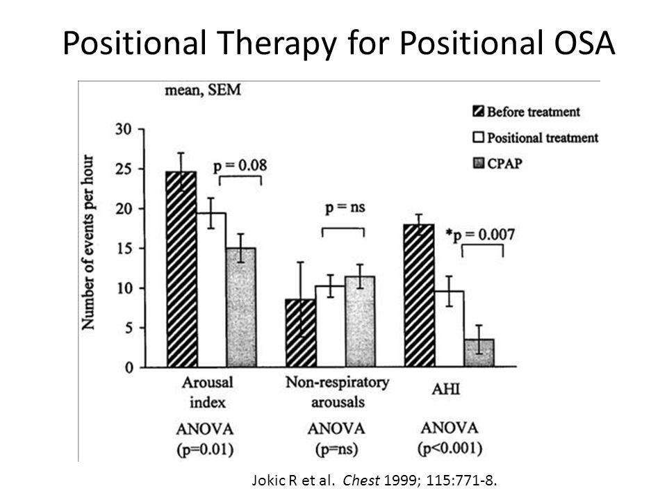 Positional Therapy for Positional OSA