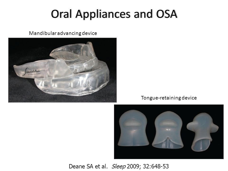 Oral Appliances and OSA