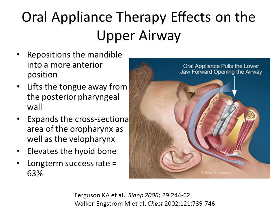 Oral Appliance Therapy Effects on the Upper Airway