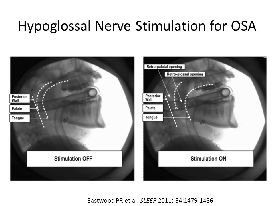 Hypoglossal Nerve Stimulation for OSA