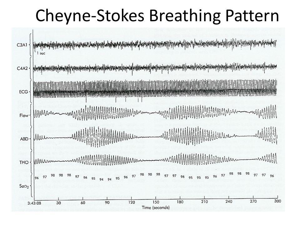 Cheyne-Stokes Breathing Pattern