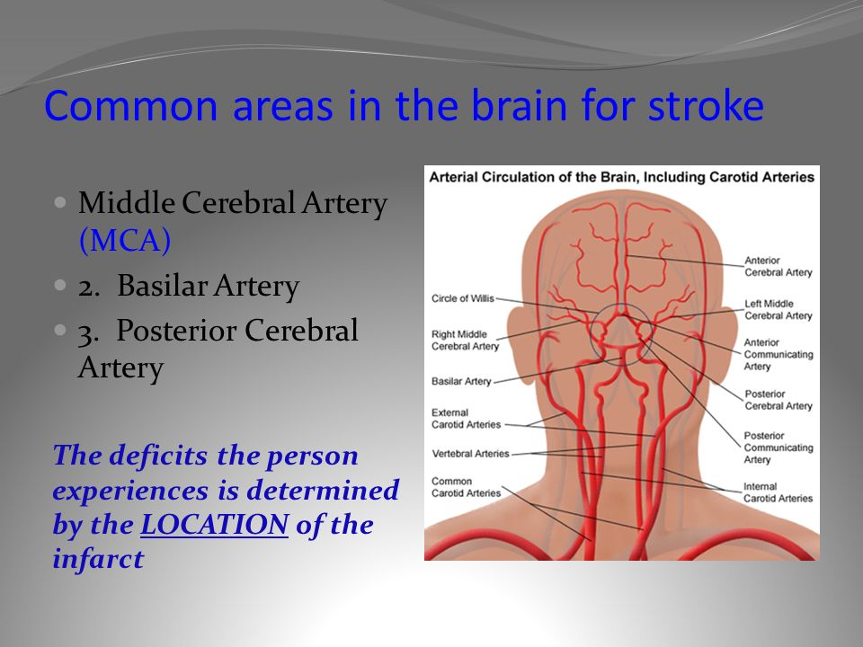 Pathophysiology of Stroke Wanda Lovitz, APRN - ppt video online download