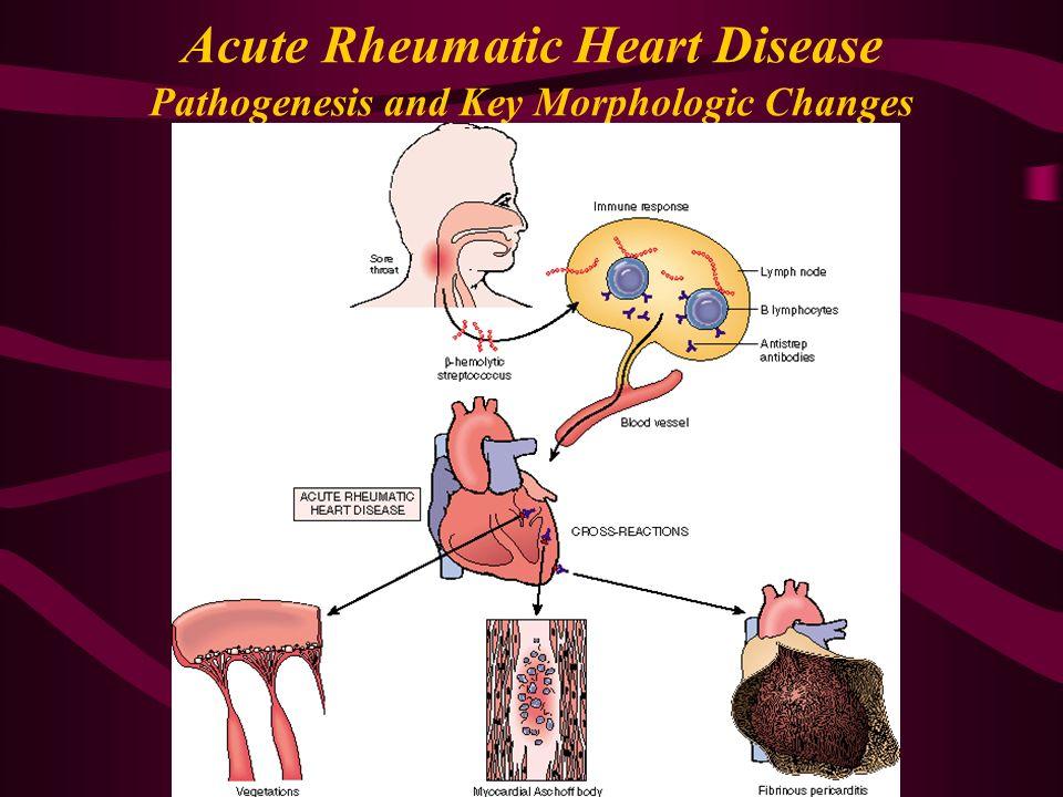 rheumatic fever rheumatic heart disease