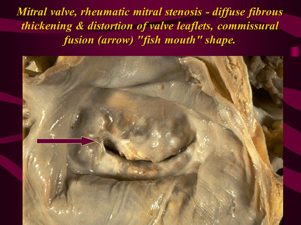 Pathology of cardiovascular system lectures valvular for Diffuse mural thickening