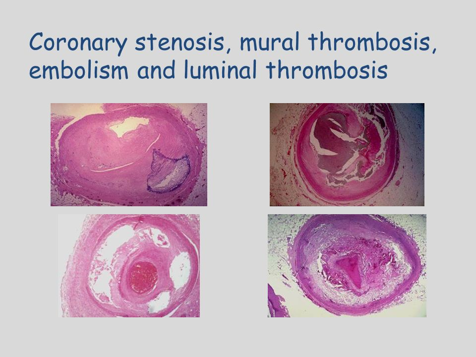 Cardiovascular system ppt download for Mural thrombosis