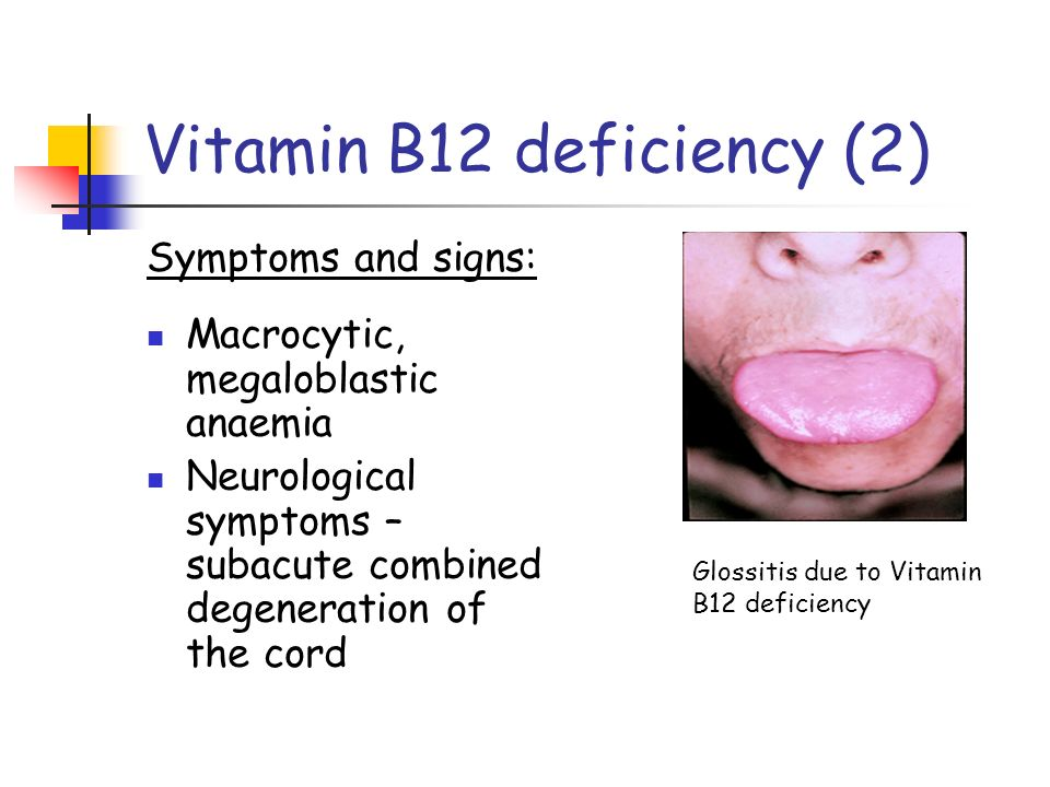 Failure of red cell production - ppt video online download B12 Deficiency Symptoms