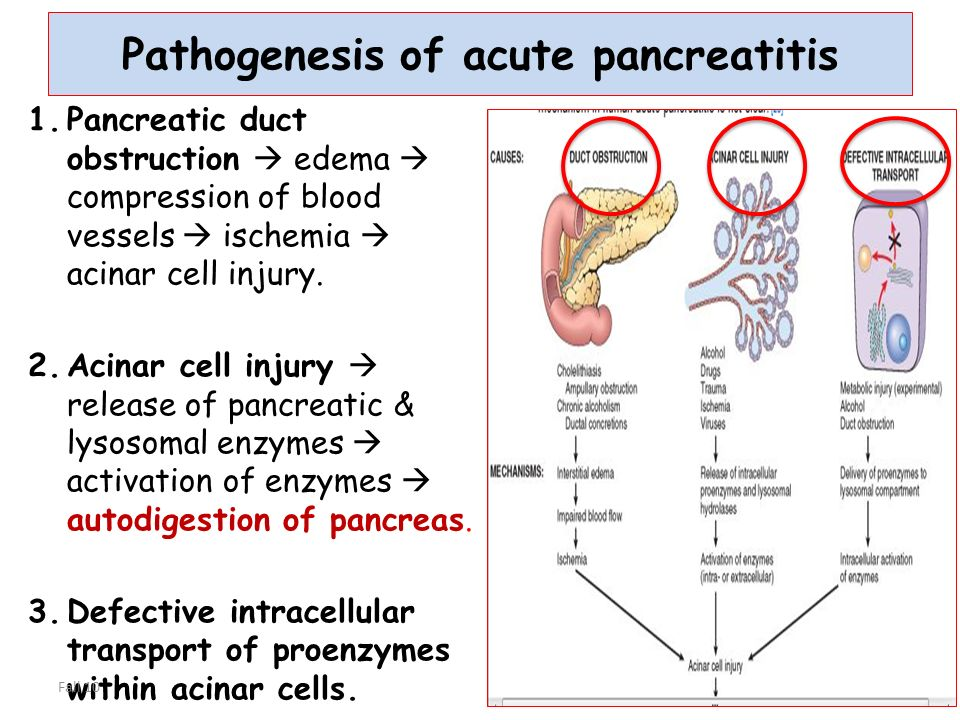 What Is Pancreatitis?