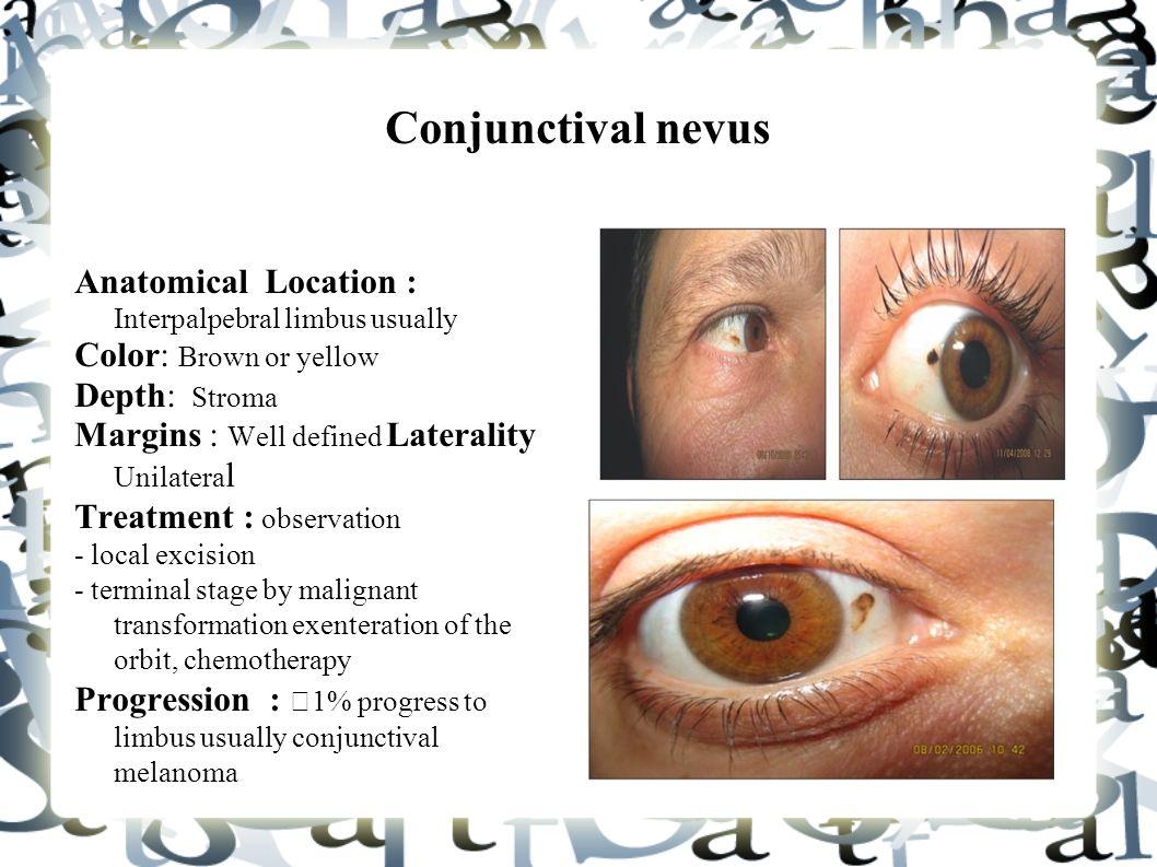 Eye Anatomy Limbus Image collections - human body anatomy
