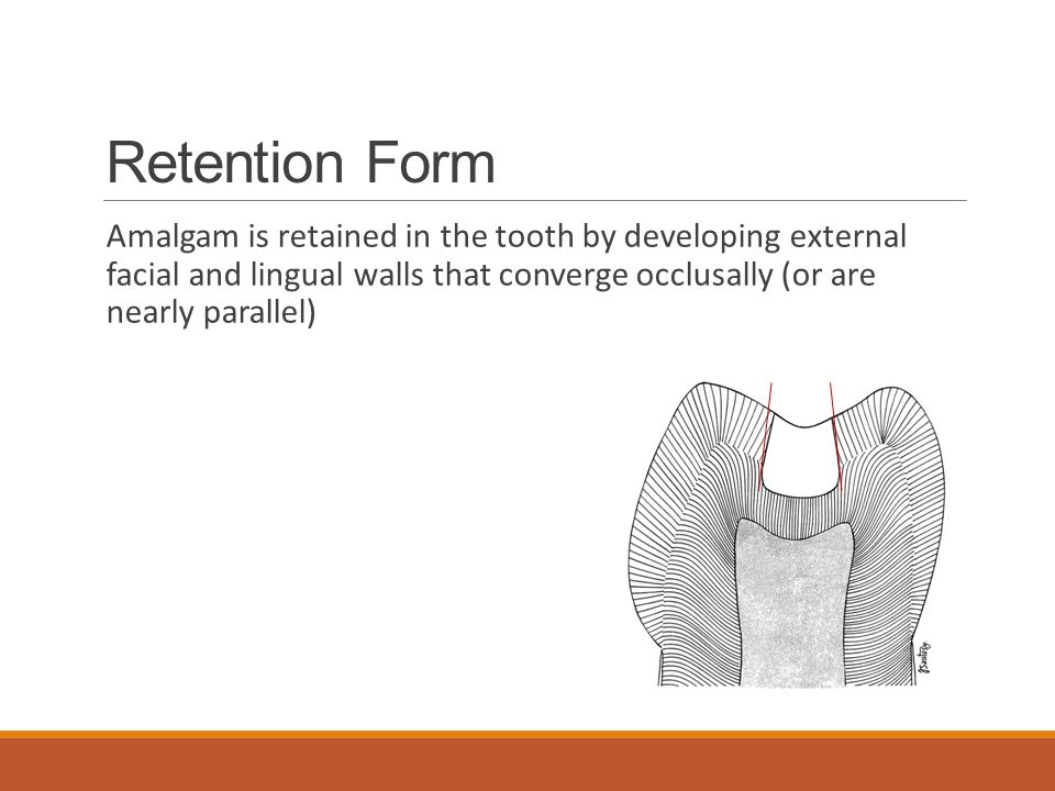 Retention Form Amalgam is retained in the tooth by developing external facial and lingual walls that converge occlusally (or are nearly parallel)