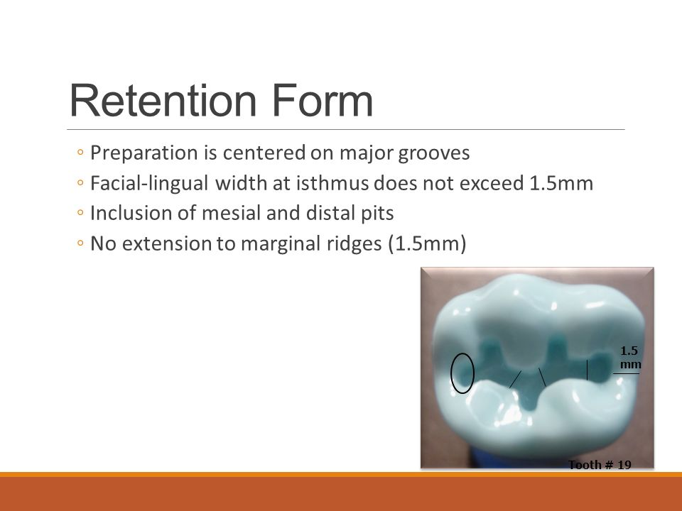 Retention Form Preparation is centered on major grooves