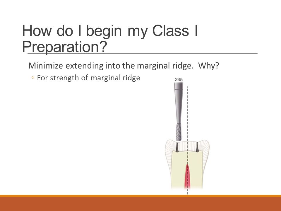 How do I begin my Class I Preparation
