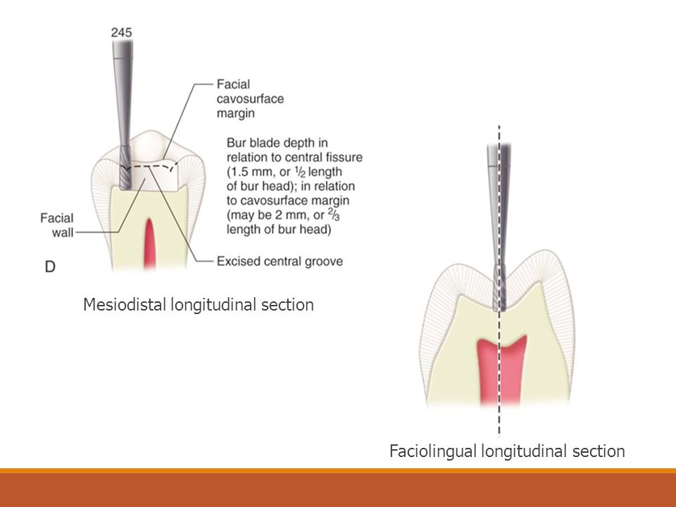 Mesiodistal longitudinal section