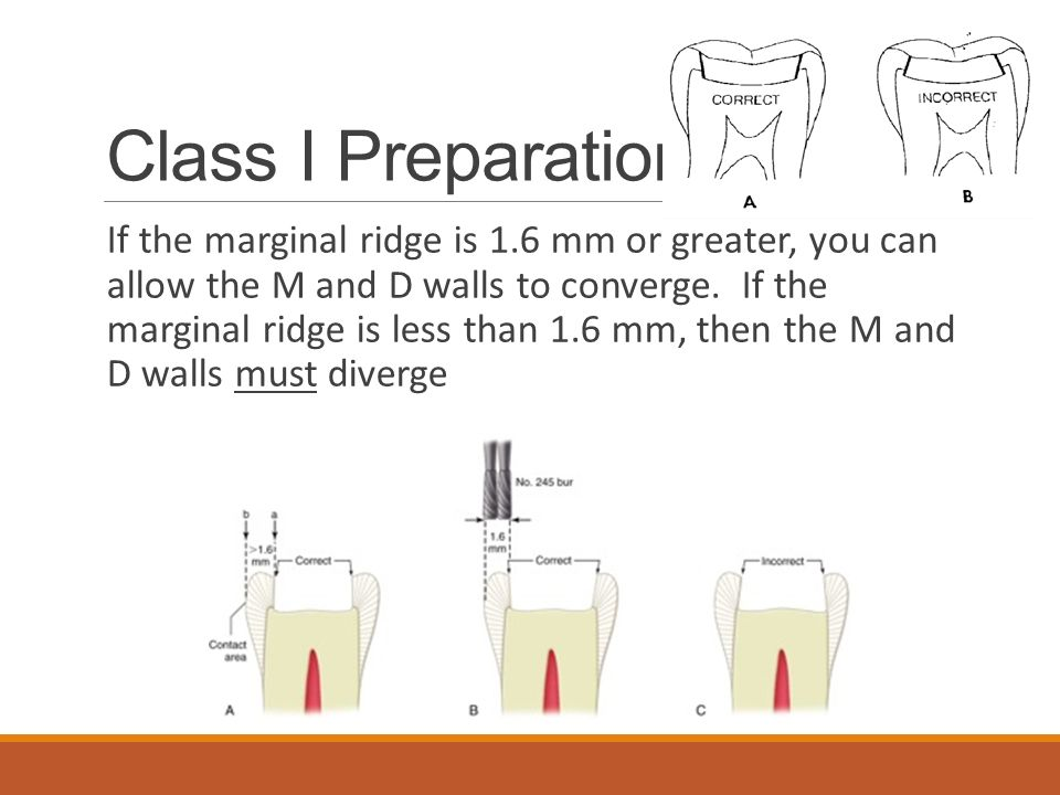 Class I Preparation