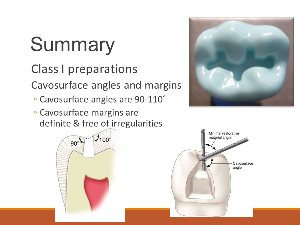 Summary Class I preparations Cavosurface angles and margins