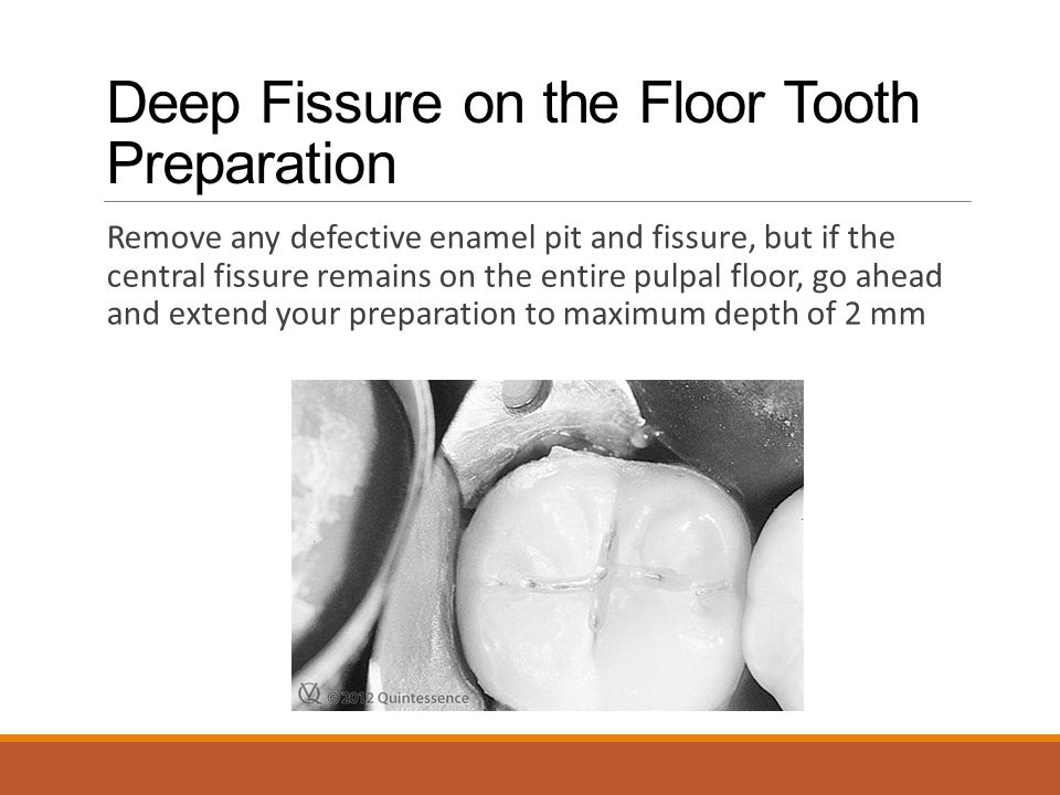 Deep Fissure on the Floor Tooth Preparation