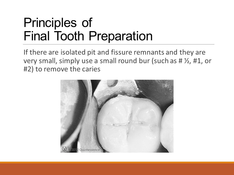 Principles of Final Tooth Preparation