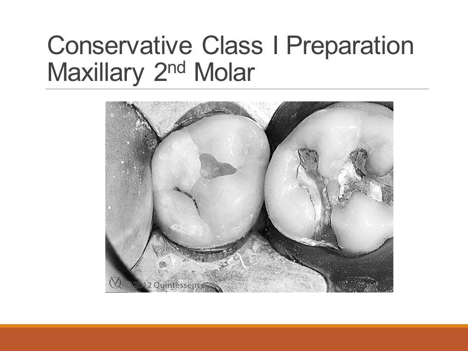 Conservative Class I Preparation Maxillary 2nd Molar
