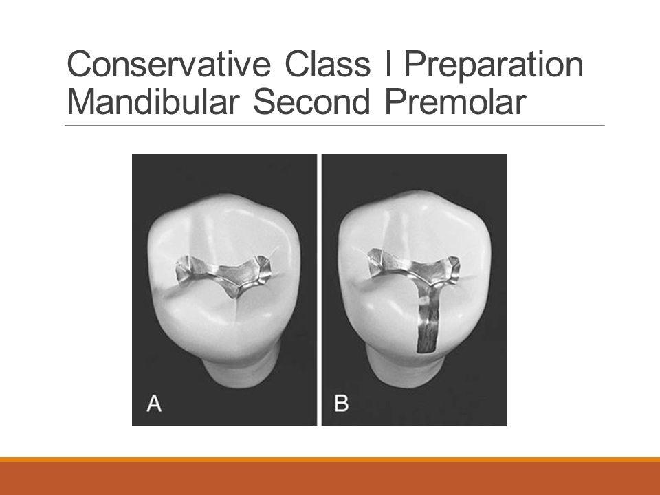 Conservative Class I Preparation Mandibular Second Premolar
