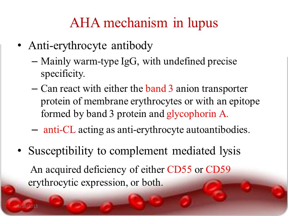 Hematological manifestations of Systemic Lupus Erythematosus - ppt video online download
