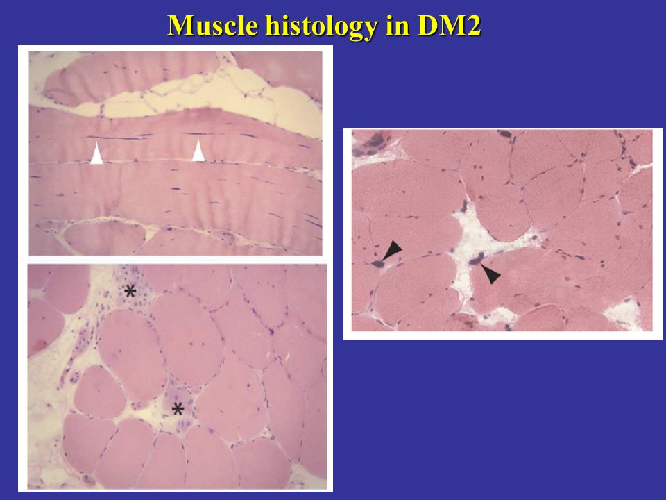 Myotonic Dystrophy Dm Suhail Abdulla Alrukn Ppt Video